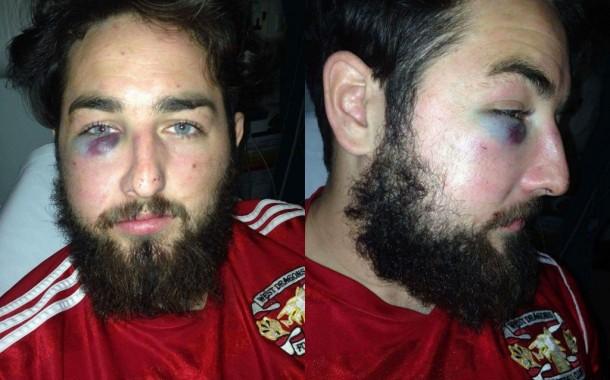 Violent football player jailed